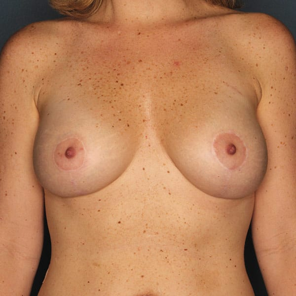 Breast Augmentation Patient 3019 After