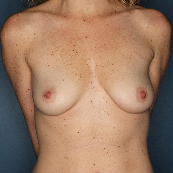 Breast Augmentation Patient 3019 Before