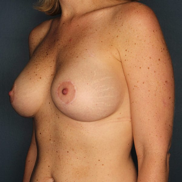 Breast Augmentation Patient 3019 After - 2
