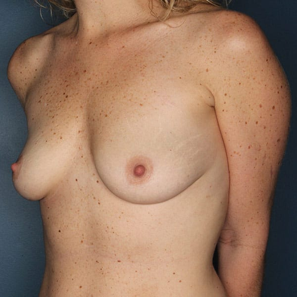 Breast Augmentation Patient 3019 Before - 2