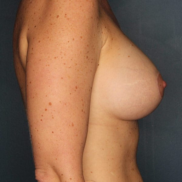 Breast Augmentation Patient 3019 After - 3