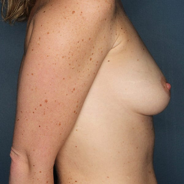 Breast Augmentation Patient 3019 Before - 3