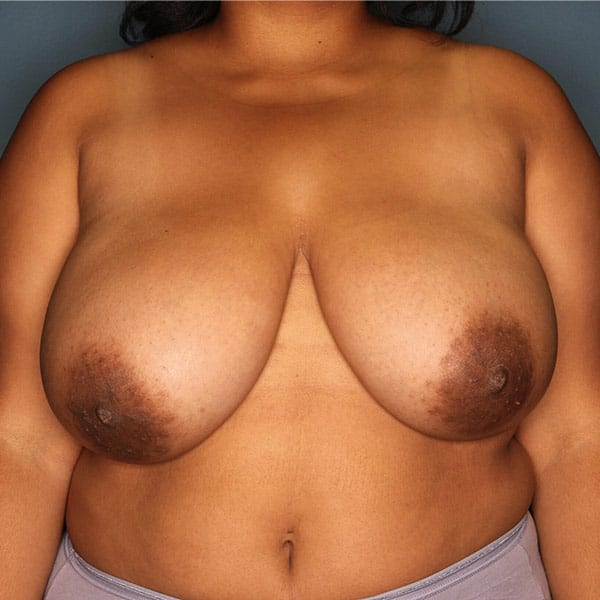 Breast Reduction Patient 3119 Before