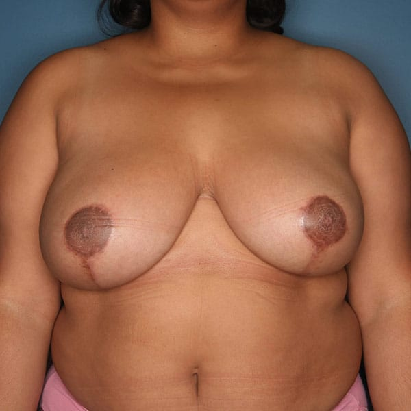 Breast Reduction Patient 3119 After