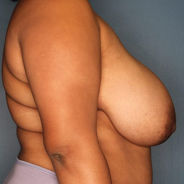 Breast Reduction Patient 3119 Before - 3