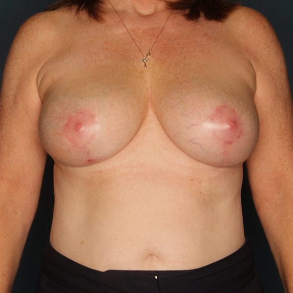 Breast Augmentation Patient 3219 After