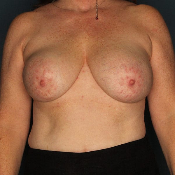 Breast Augmentation Patient 3219 Before