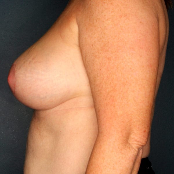 Breast Augmentation Patient 3219 After - 2