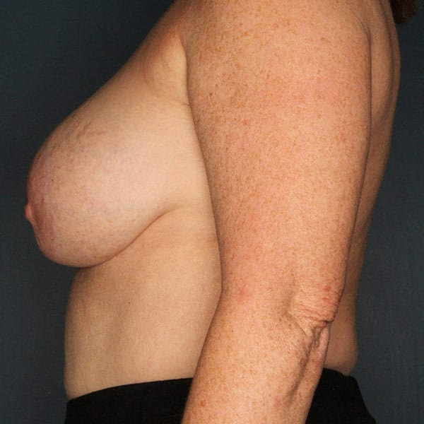 Breast Augmentation Patient 3219 Before - 2