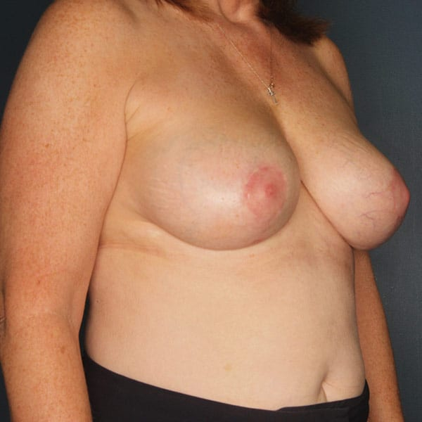 Breast Augmentation Patient 3219 After - 3