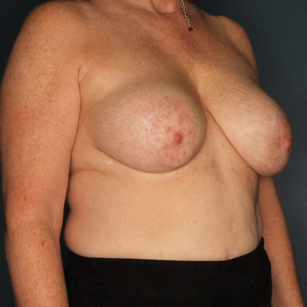 Breast Augmentation Patient 3219 Before - 3