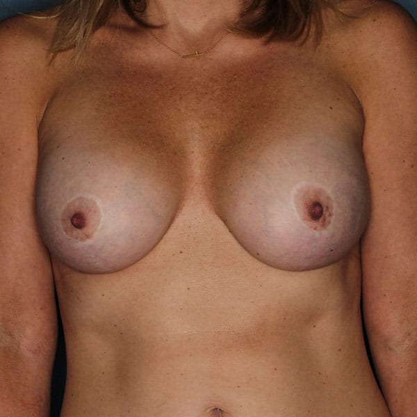 Breast Augmentation Patient 3319 After