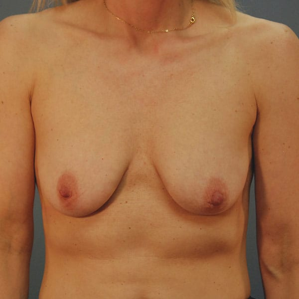 Breast Augmentation Patient 3319 Before