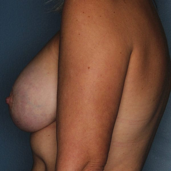 Breast Augmentation Patient 3319 After - 2