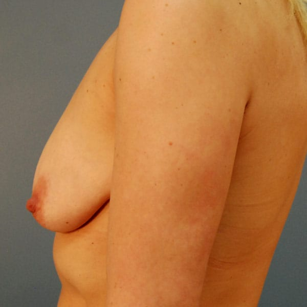 Breast Augmentation Patient 3319 Before - 2