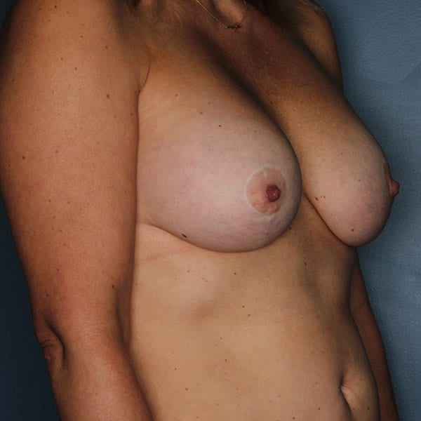 Breast Augmentation Patient 3319 After - 3