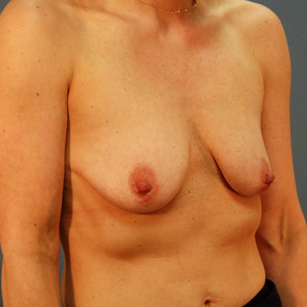 Breast Augmentation Patient 3319 Before - 3