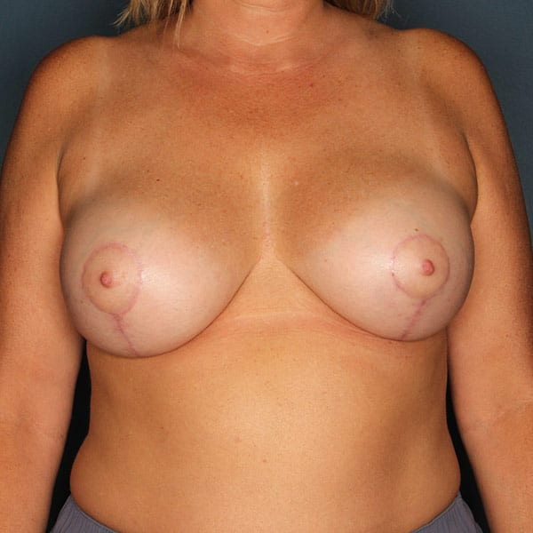 Breast Augmentation Patient 3419 After