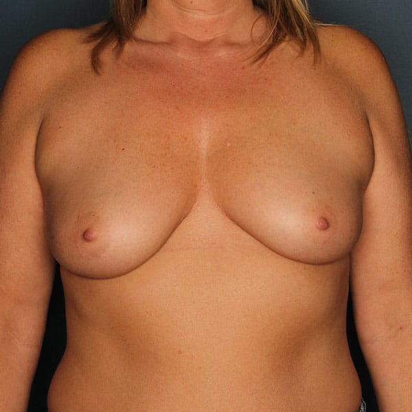 Breast Augmentation Patient 3419 Before