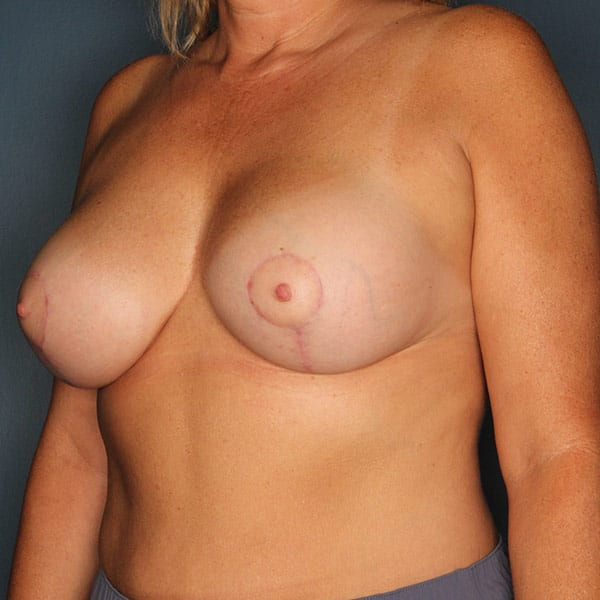 Breast Augmentation Patient 3419 After - 2