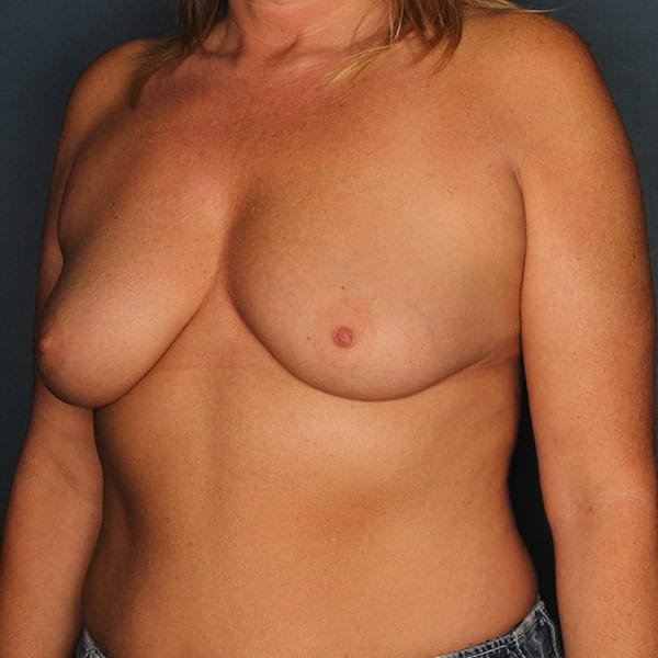Breast Augmentation Patient 3419 Before - 2