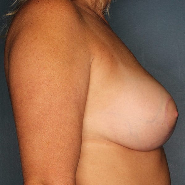 Breast Augmentation Patient 3419 After - 3