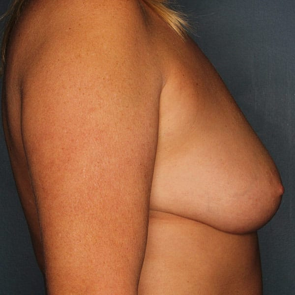 Breast Augmentation Patient 3419 Before - 3