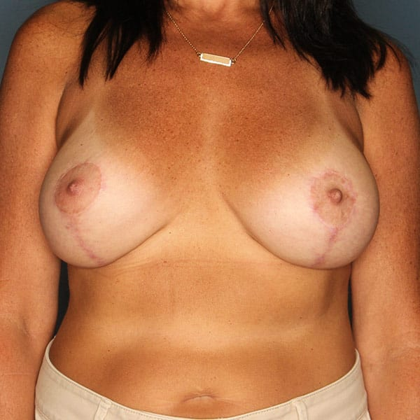 Breast Augmentation Patient 3519 After