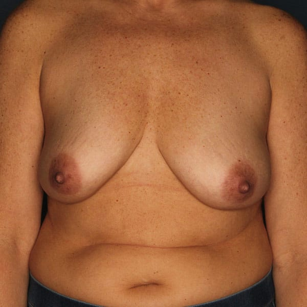Breast Augmentation Patient 3519 Before