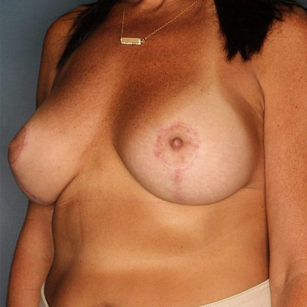 Breast Augmentation Patient 3519 After - 2