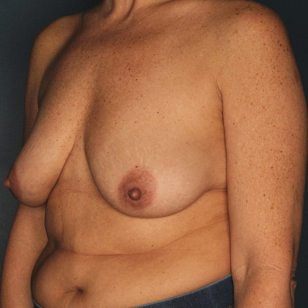 Breast Augmentation Patient 3519 Before - 2