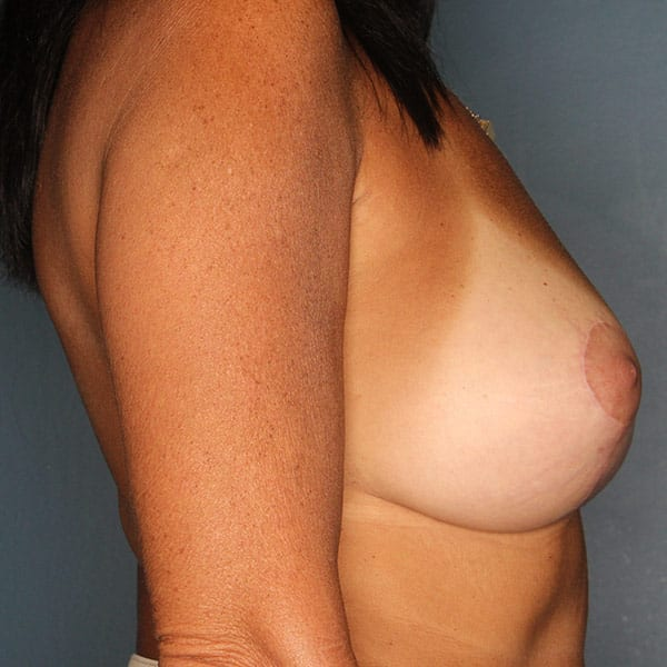 Breast Augmentation Patient 3519 After - 3