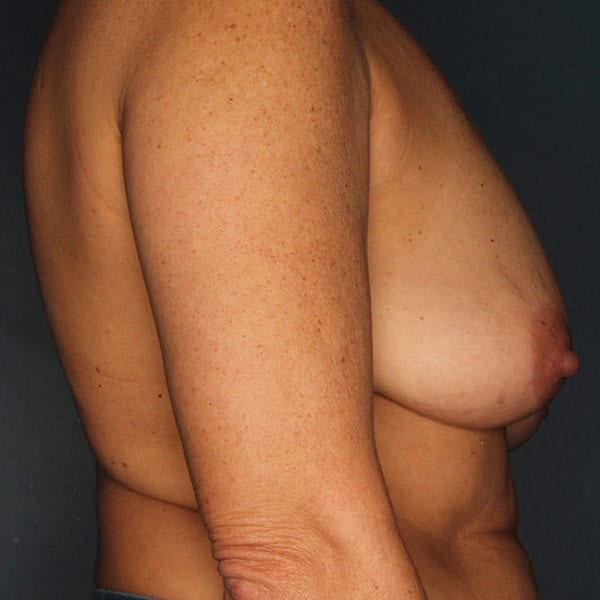 Breast Augmentation Patient 3519 Before - 3