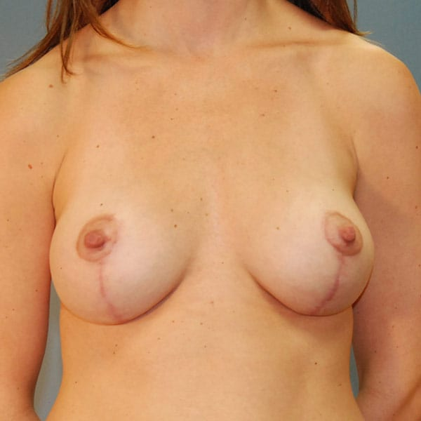 Breast Augmentation Patient 3619 After