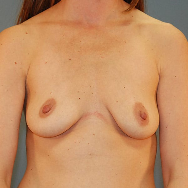 Breast Augmentation Patient 3619 Before