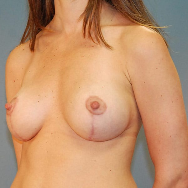 Breast Augmentation Patient 3619 After - 2