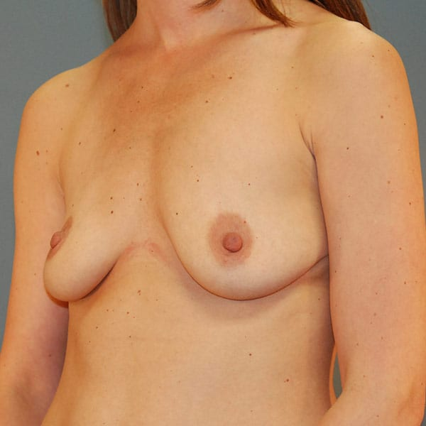 Breast Augmentation Patient 3619 Before - 2
