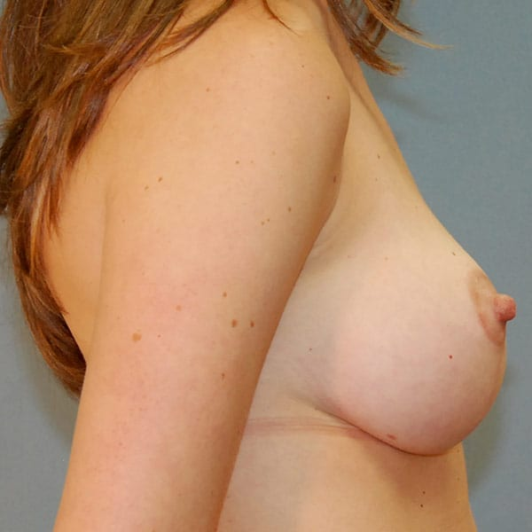 Breast Augmentation Patient 3619 After - 3
