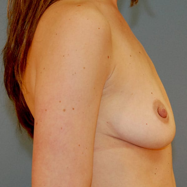 Breast Augmentation Patient 3619 Before - 3