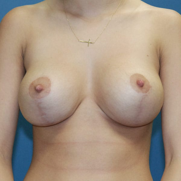 Breast Augmentation Patient 3819 After
