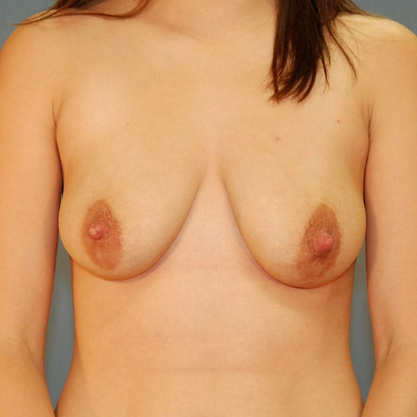 Breast Augmentation Patient 3819 Before