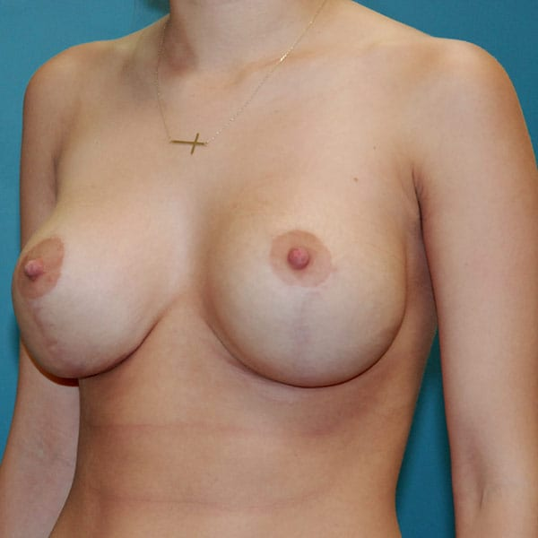 Breast Augmentation Patient 3819 After - 2