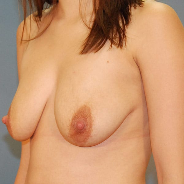 Breast Augmentation Patient 3819 Before - 2