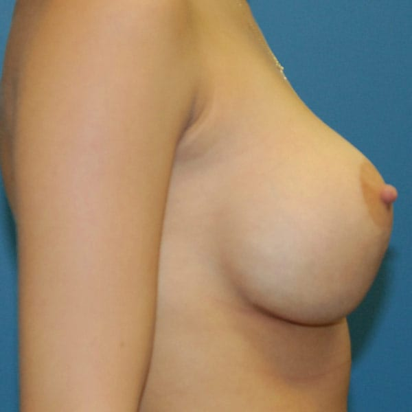 Breast Augmentation Patient 3819 After - 3