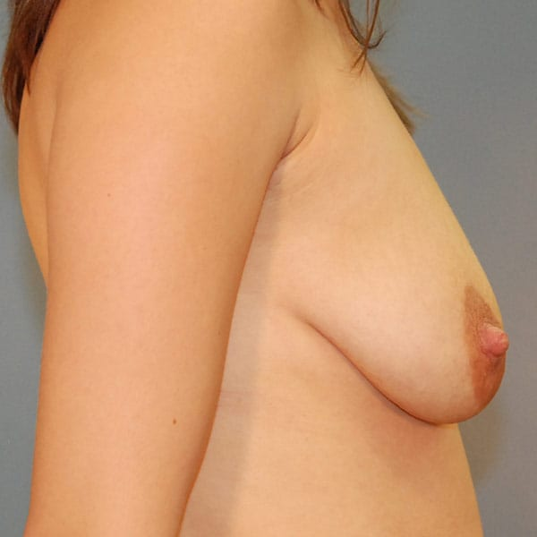 Breast Augmentation Patient 3819 Before - 3
