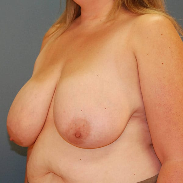 Breast Reduction Patient 3919 Before - 2