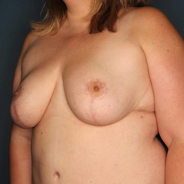 Breast Reduction Patient 3919 After - 2