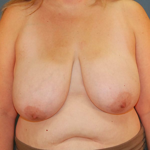 Breast Reduction Patient 3919 Before