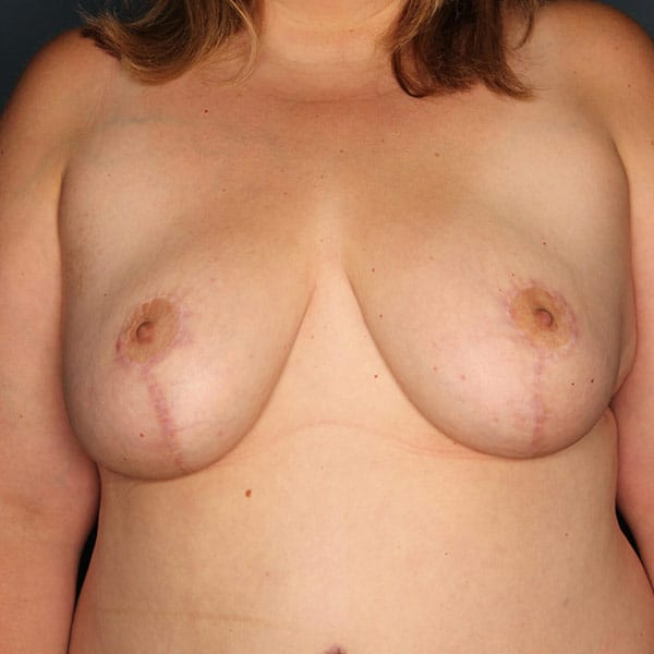 Breast Reduction Patient 3919 After