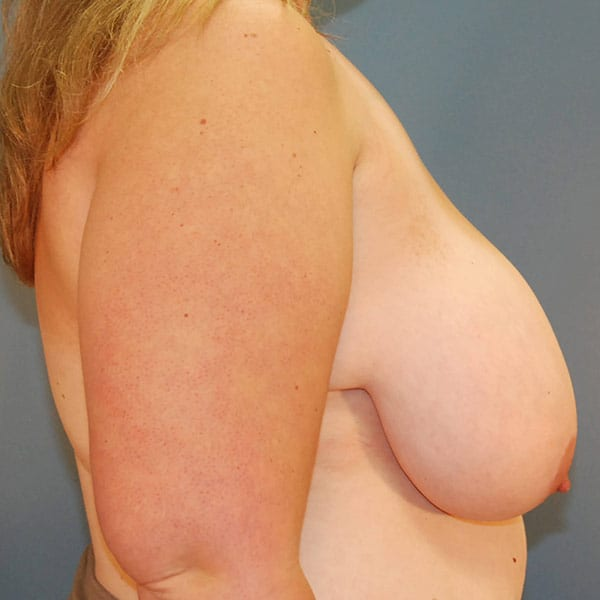 Breast Reduction Patient 3919 Before - 3